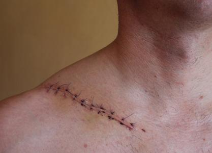 symptoms of clavicle fracture