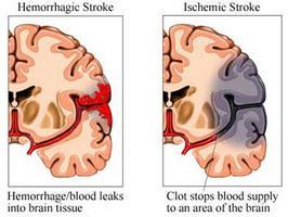 кровоизлияние в мозг причины