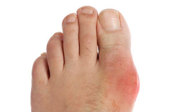 Алматы удаление косточек на ногах