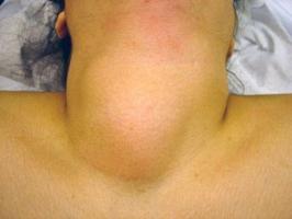 диффузно очаговые изменения щитовидной железы