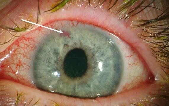 глазное давление лечение в домашних условиях — Новости ...