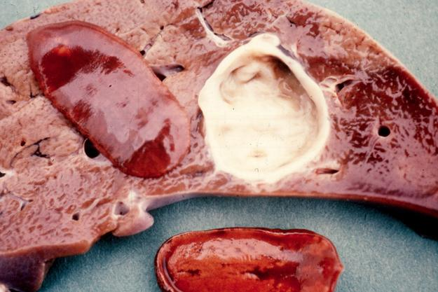 очищение кишечника от паразитов народными средствами
