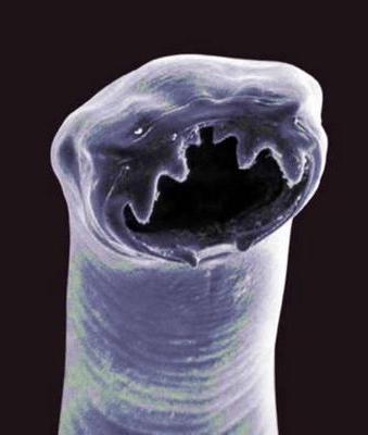 лекарство паразитов внутри человека