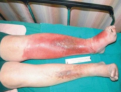 профилактика рожистого воспаления ноги