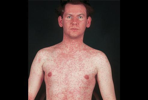 краснуха у взрослых симптомы лечение фото