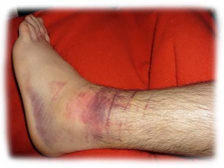 Раны на ногах при сердечной недостаточности как лечить