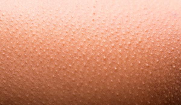 Мелкие пупырышки на коже
