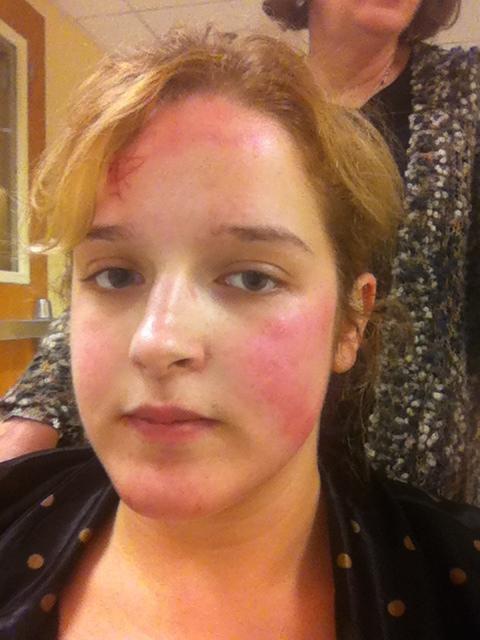 аллергия в виде мелких прыщиков