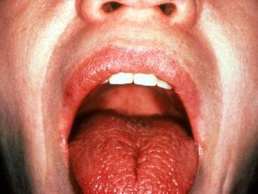 Лечения гонореи кожные болезни