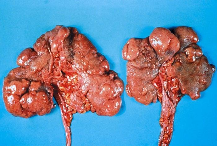 хронический пиелонефрит педиатрия