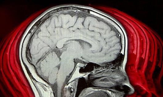 правильное дыхание при головных болях