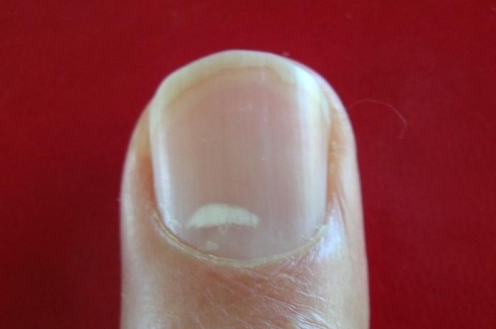 Чем лучше вылечить грибок ногтях