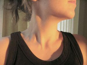 lymph nodes in the neck hurt