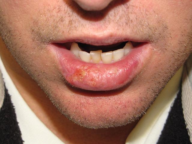 рак губы первые признаки