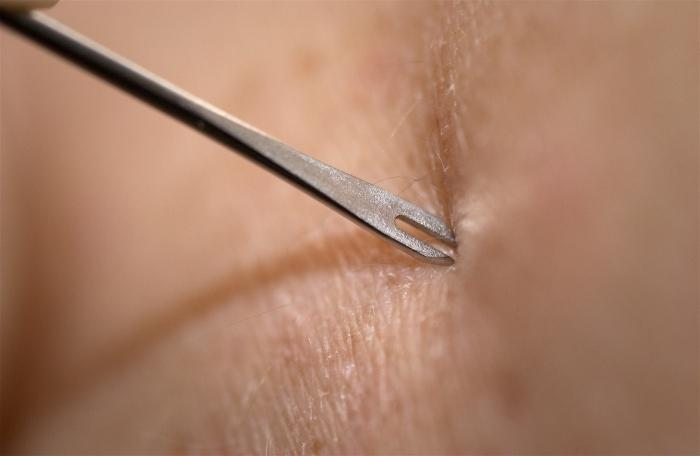 How to make an injection subcutaneously