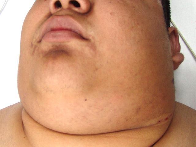 lymph node metastases