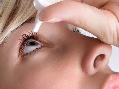 keratitis eye treatment
