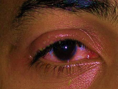 keratitis eyes
