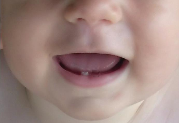 когда у ребенка начинают резаться зубки симптомы