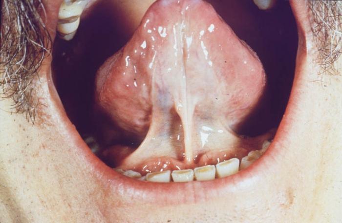 Прогресс заболевания обычно сопровождается усилением болевого синдрома, даже если воспаление уже прошло.