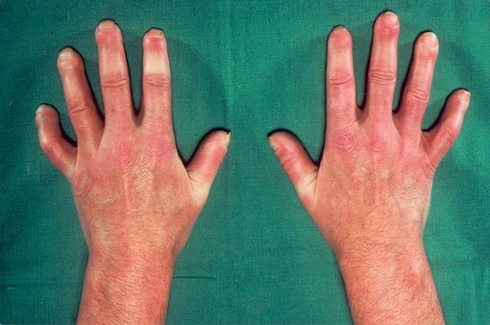systemic scleroderma symptoms