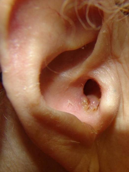 Лечение рака кожи облучение