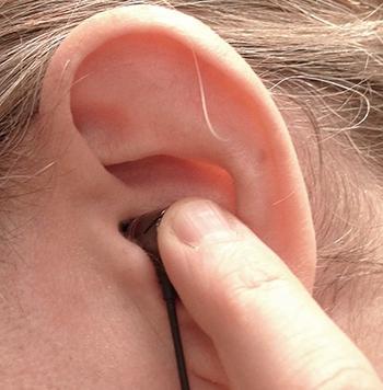 Фурункул в ушах лечение в домашних условиях 646