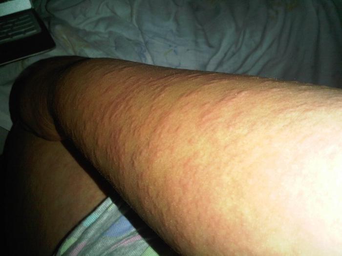 аллергия все чешется что делать