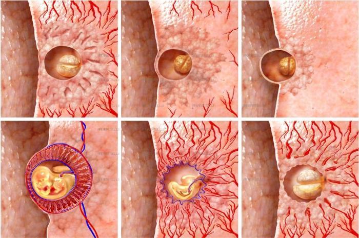У беременных старение плаценты 59