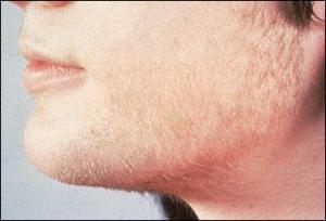 Кому помог миноксидил для бороды эвкалиптом избавят