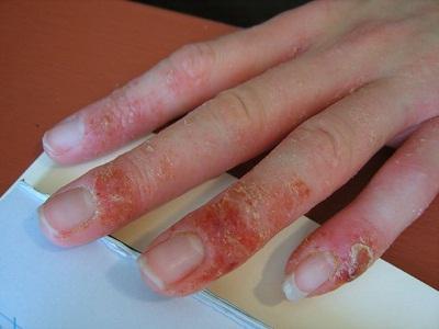 аллергия на пальцах фото