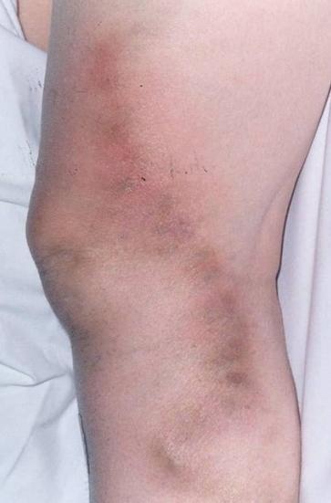 acute thrombophlebitis