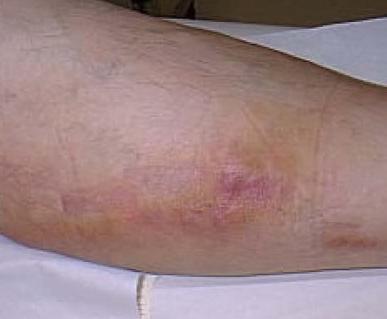 what is thrombophlebitis