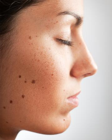 Папилломавирус у женщин картинки