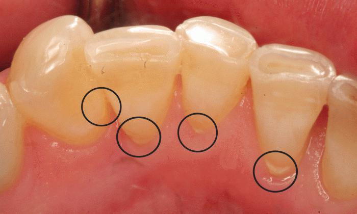 Камни зубные отвалились сами