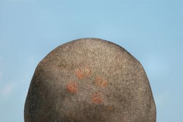Выпадают волосы что делать когда начнтся восстановление