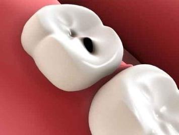 Сон к чему ломаются зубы во сне