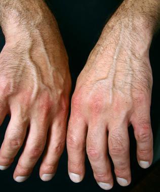 Гипертоническая болезнь 2-й степени лечение