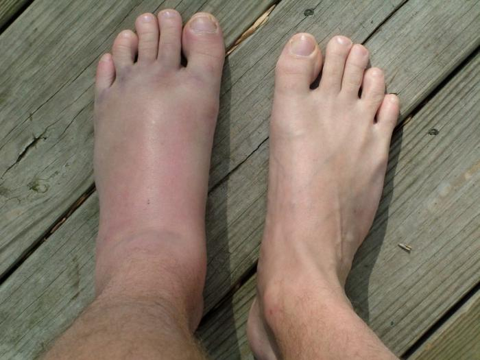 Sprain of the foot