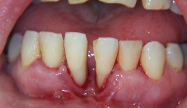 кровоточат зубы и неприятный запах изо рта