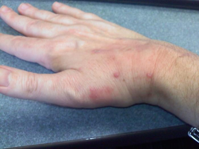 red dots on the hands