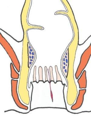 foto-intimnoy-plasticheskoy-hirurgii