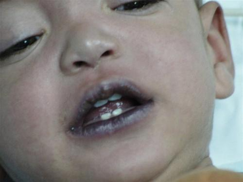 синий носогубный треугольник у ребенка