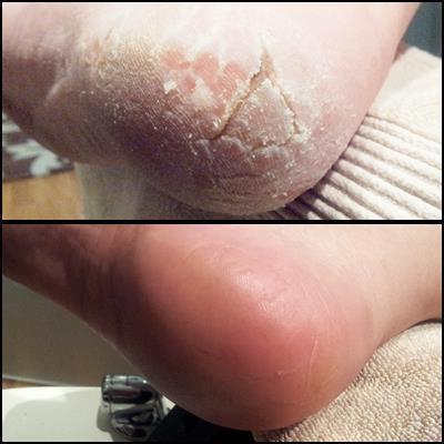 Хронический тонзиллит лечение лазером отзывы