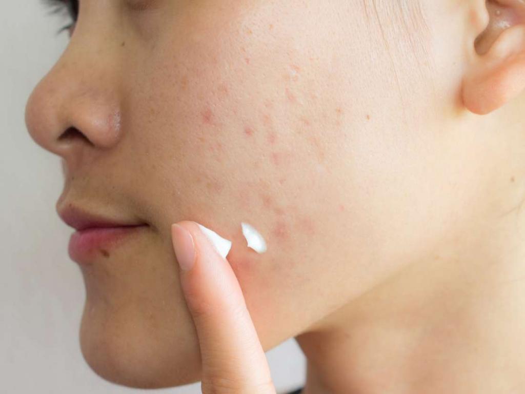 Препараты от прыщей и угрей - шаг к здоровой коже