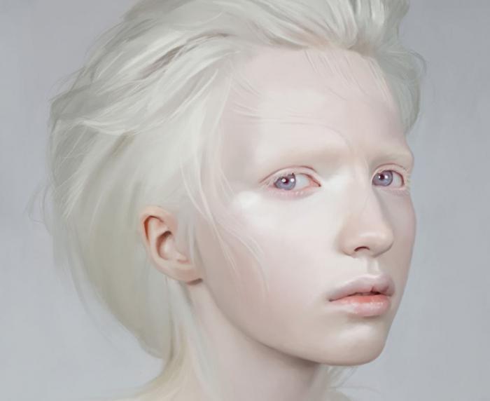 Beautiful albino human