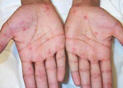Сыпь на ладонях: причины, симптомы, лечение