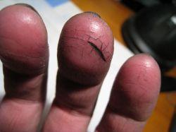 Что делать, когда появляются трещины на пальцах рук