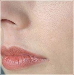 Расширенные поры на лице. Причины и методы устранения