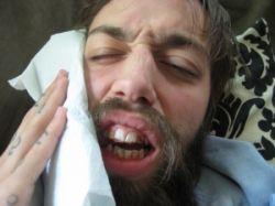 Болит зуб? Пора к врачу!